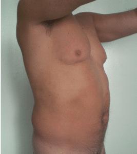 Liposukcja tors przed
