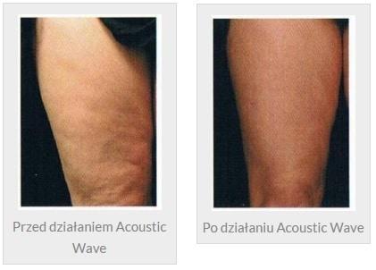 usuwanie cellulitu falą akustyczną