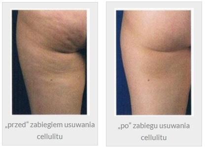 Usuwanie cellulitu, cellulit